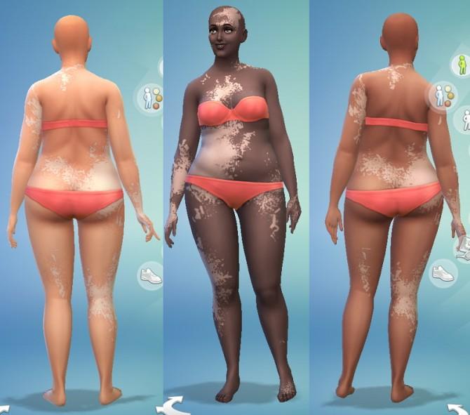 Vitiligo At Jongarakun S Junk Sims 4 Updates