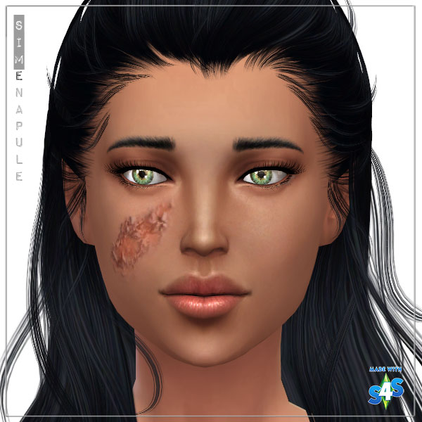 Sims 4 Scars And Wounds Related Keywords & Suggestions