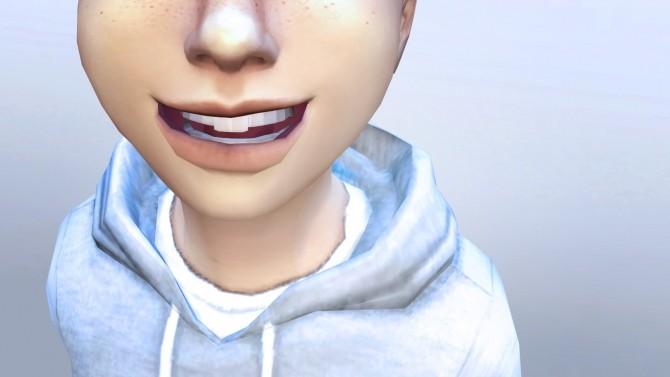 Sims 4 3D Buck Teeth Veneers for Everyone at Pickypikachu