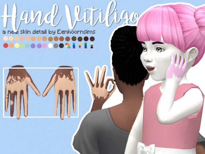 Hand Vitiligo by xEenhoornx at SimsWorkshop image 11511 670x503 Sims 4 Updates