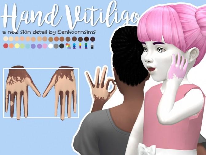 Sims 4 Hand Vitiligo by xEenhoornx at SimsWorkshop