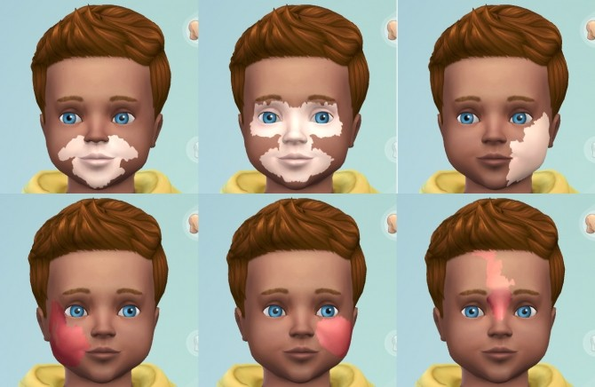 Port Wine Stain & Vitiligo Facial Marks for Toddlers by harlequin eyes at Mod The Sims image 2615 670x436 Sims 4 Updates
