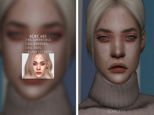 Acne #02 by Scarlett content at TSR image 1935 Sims 4 Updates