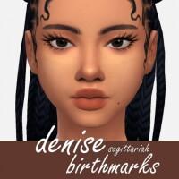 Denise Birthmarks by Sagittariah