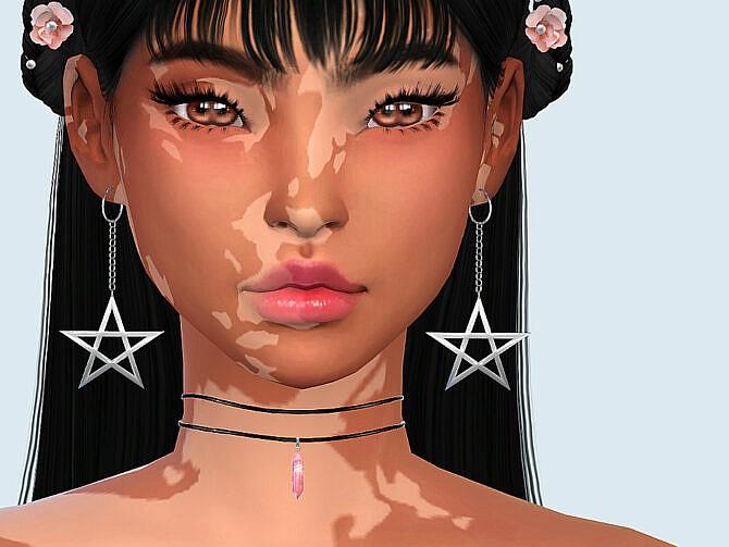 Sims 4 Skin Detail Vitiligo Set No. 2 by Saruin at TSR
