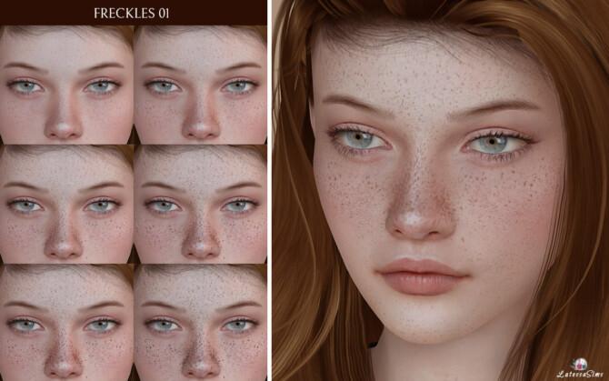 Freckles 01
